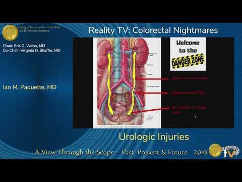 Jatrogenne urazy układu moczowego podczas operacji chirurgicznych