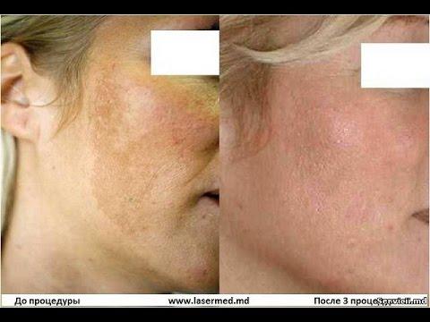 Отбеливание лицо с гидроперитом