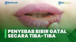 4 Kondisi Penyebab Bibir Tiba-tiba Gatal yang Ganggu Aktivitas