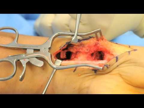 Hip Diagnose und Behandlung