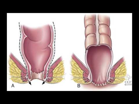 Dysbiosis crohn s disease