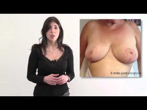 La plastique des poitrines otzyvy.ijevsk