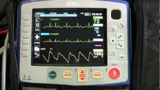 Instruction Of The Zoll X Series - Part 3 (Basic EKG Monitoring)