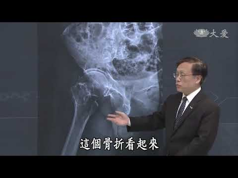 Do Men Get Osteoporosis?