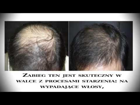 Keratyna odbudowa i opieki nad nimi włosy