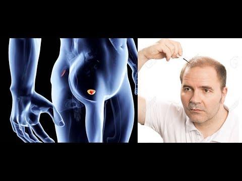 Si usted es la prostatitis enfermos pueden concebir