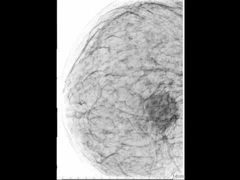 Sonomammografia - Ropień Prawego Sutka