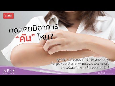 Varices เชิงกรานในระหว่างการรักษาการตั้งครรภ์