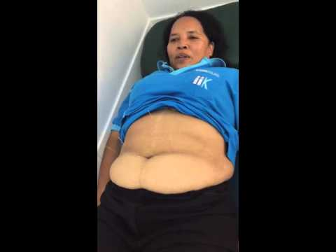 จากนมใด ๆ ในการลดน้ำหนัก
