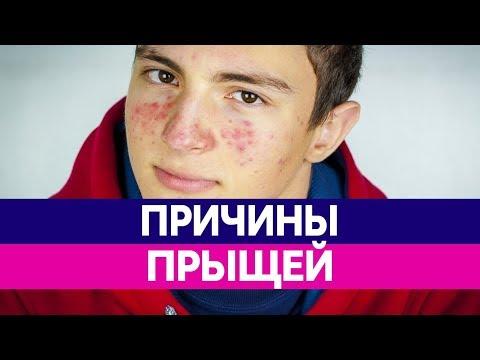 Самое эффективные средства для отбеливания кожи лица