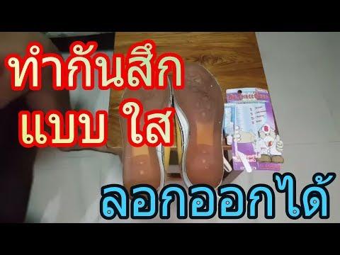 ICD นิ้วเท้าผิดปกติ