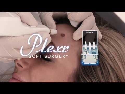 Plexr applications in Aesthetic Medicine