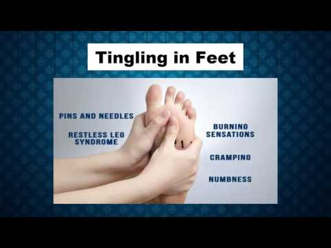 Video Tingling in Feet Symptoms and Signs - Tingling on Toes - Tingling of Legs and Feet