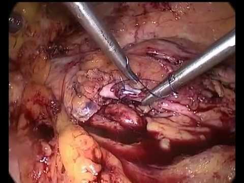 Il sangue in mezzo al mal di ciclo inferiore della schiena