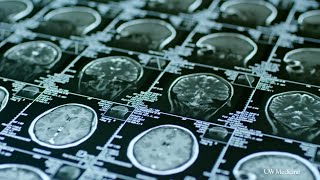 Newswise:Video Embedded alzheimer-s-study-shows-promise-in-protecting-brain-from-tau