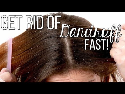 Video How to get rid of Dandruff FAST!! Only 2 Ingredients! Highly effective!