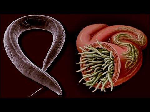 Paraziták tünetei a gyomorban