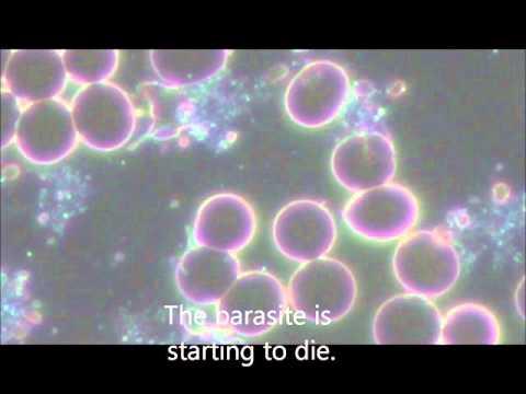 Akhatiny les parasites dangereux pour la personne