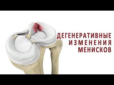 Articulația doare după perforare