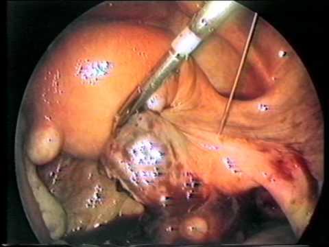 Les centres dÉtat de la chirurgie vasculeuse