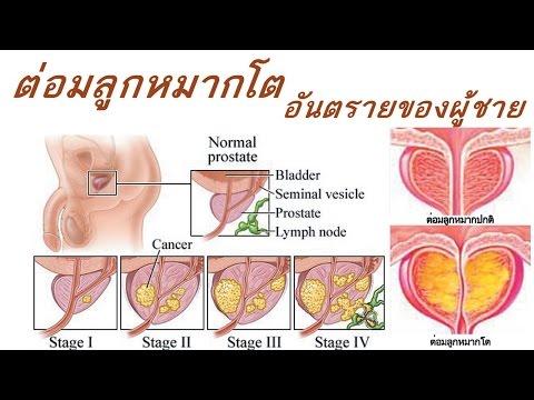 อุดตันเป็น intravascular ก้อนเลือด