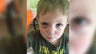 Ребёнку в детсаду разрезали глаз?