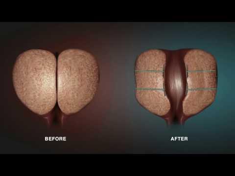 Vene gonfie prostatite