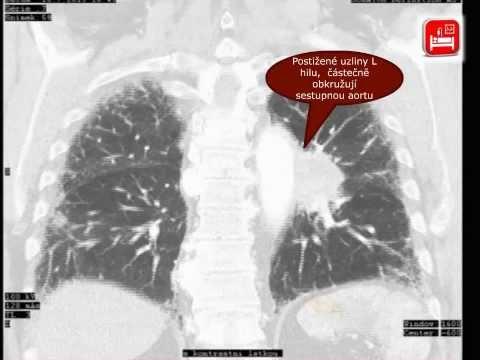 Vztahující se k onemocnění u pacientů s hypertenzí