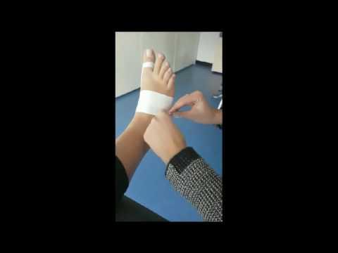 Die Abtragung des Kernes auf dem Daumen des Beines die Operation vom Laser die Rezensionen