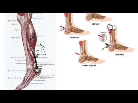 A boka kenőcsének deformáló artrózisa