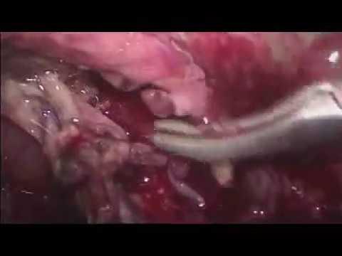 Tratamiento de la hipertensión intracraneal CSF