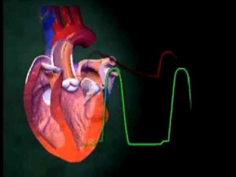 Método yóguico de tratamiento de yodo hipertensión