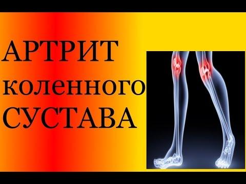 Артрит коленного сустава. Обзор. Методы лечения. Обзор средств