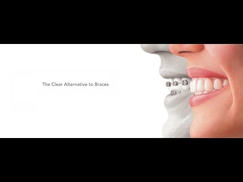 Invisalign Experience (Braces) : Explanation, Before and After
