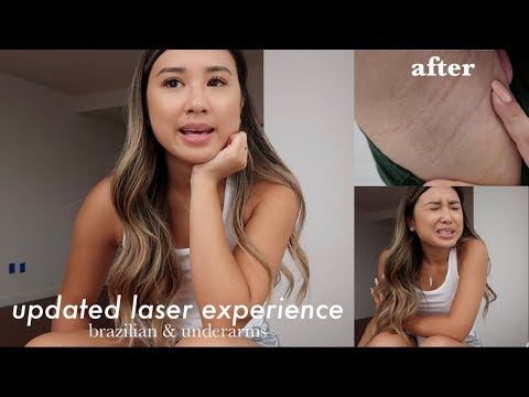 UPDATED LASER HAIR REMOVAL EXPERIENCE: BRAZILIAN & UNDERARMS   PRICE, PAIN, & RESULTS   PART 2