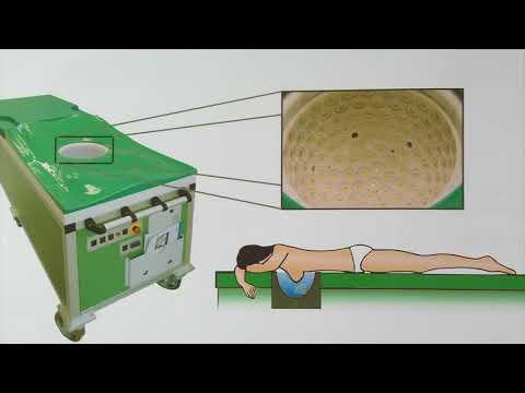 Komplexe Übung zur Vorbeugung von Arthrose