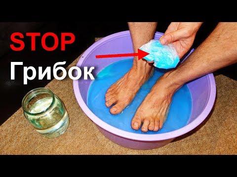 Nogtewoj gribok die Beine das Schnellkraut