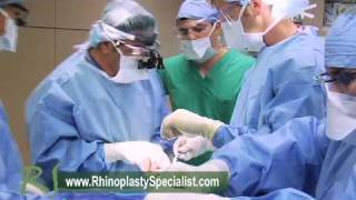 OR Video Footage: DCF Rhinoplasty