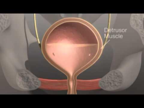 Nadreaktywność pęcherza moczowego