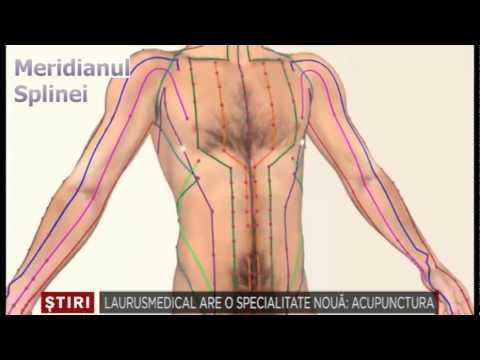 Inflamație proliferativă a țesutului conjunctiv