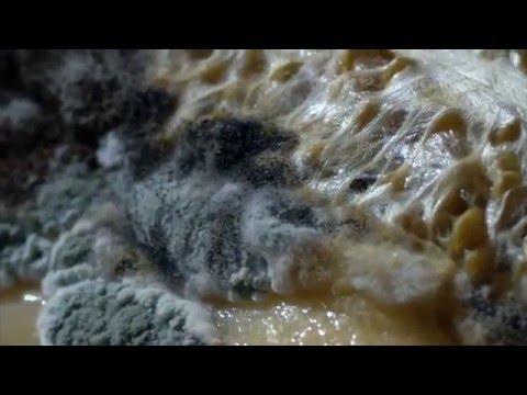 Paraziták okozta vállfájás
