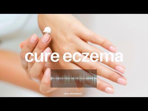 Stadio di eritematozny di eczema
