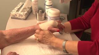 Custom-made Splint For Hand Injury Patient - Ellen Kolber, Hand Therapist