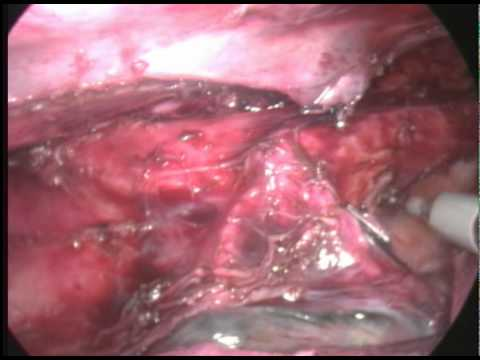 Perdita natale del rachide cervicale