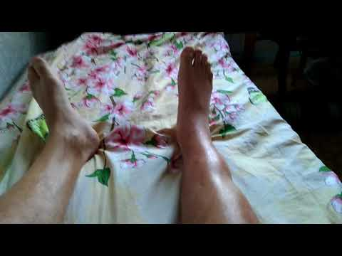 открытый перелом голени через 2 мес 3 операции