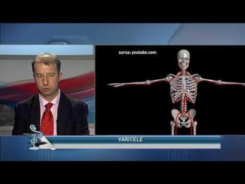 Varicoză de picior varicoză