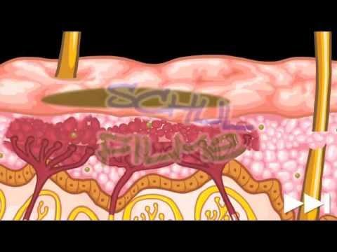 Wie otbeliwajut die Haut zwischen der Beine