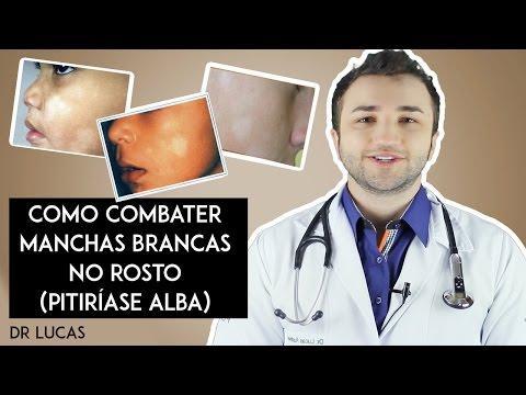 Eczema e dermatite do que tratar