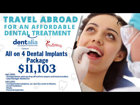 All-on-4-dental-implants-package-in-Mexico