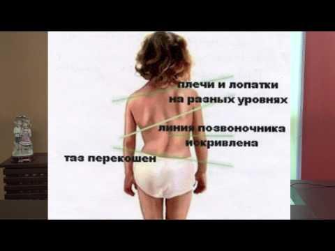 На что влияет сутулость спины